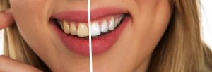 foods that damage your teeth